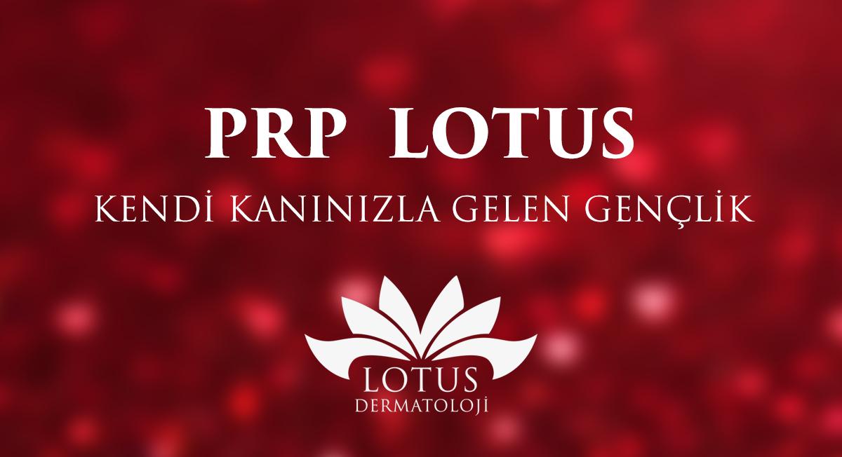prp lotus